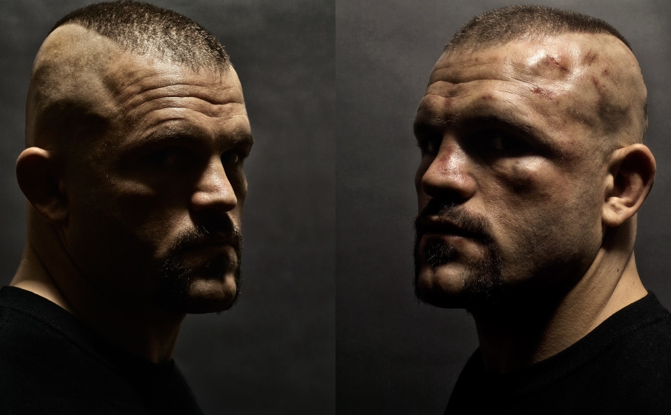 Chuck_Liddell_Before-&-After-UFC-43