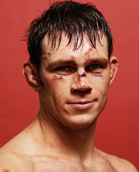 Forrest_Griffin_After_Spike